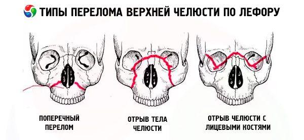 datovania s čiastočnou zubné protézy